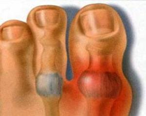 Причины роста косточки на ноге и методы лечения шишки на большом пальце ноги